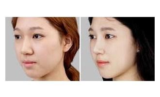 rhinoplasty-1a-klinik-bedah-plastik-estetiq
