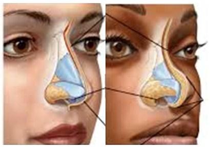 rhinoplasty-3-klinik-bedah-plastik-estetiq
